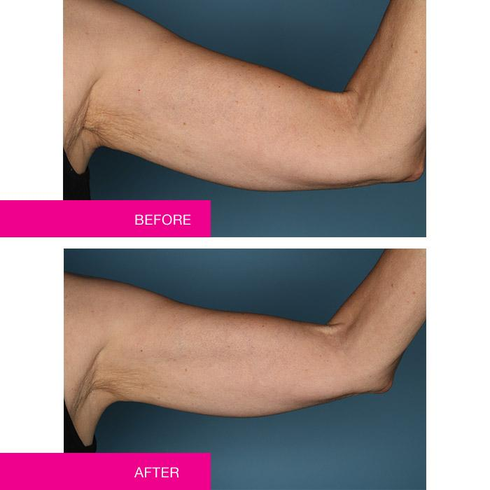 Before and after NAKEDPROOF Affirm Yourself Firming Body Cream