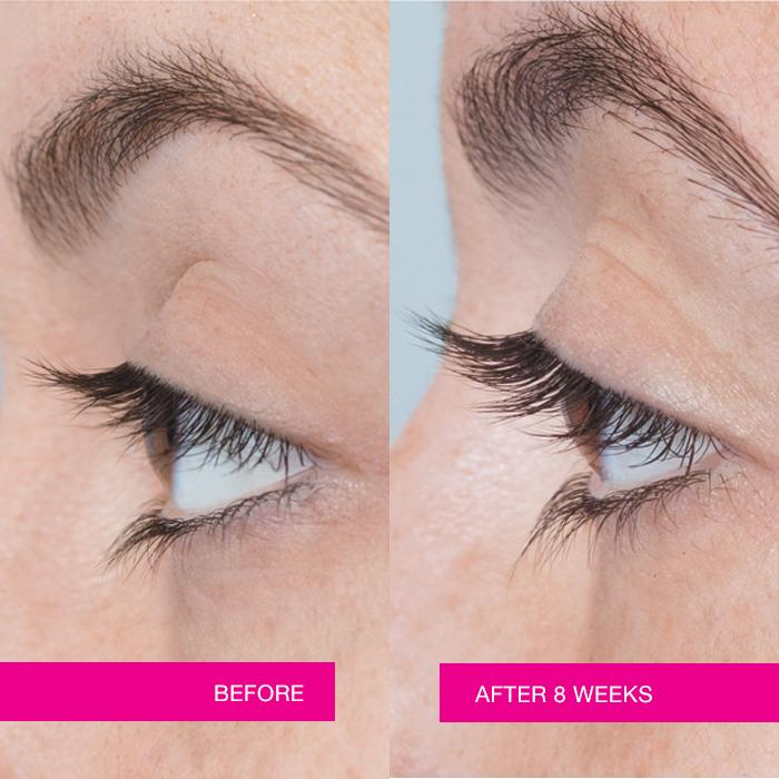 Anew Clinical Unlimited Lashes Lash & Brow Activating Serum Before and After photo